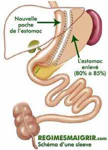 20101210-sleeve-gastrique-gastrectomie-regimesmaigrir